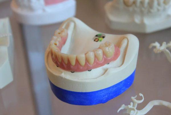 ADCIC-Best Dental Clinic Jamnagar | Top Dentist in Jamnagar | Dr Pruthvirajsinh Rathod.jpeg